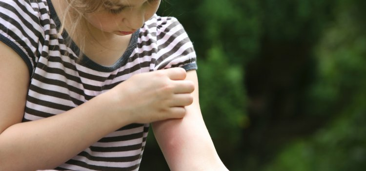 Bee and Wasp Stings – Children