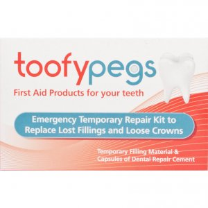 Toofypegs Emergency Temporary Repair Kit for Fillings & Crowns